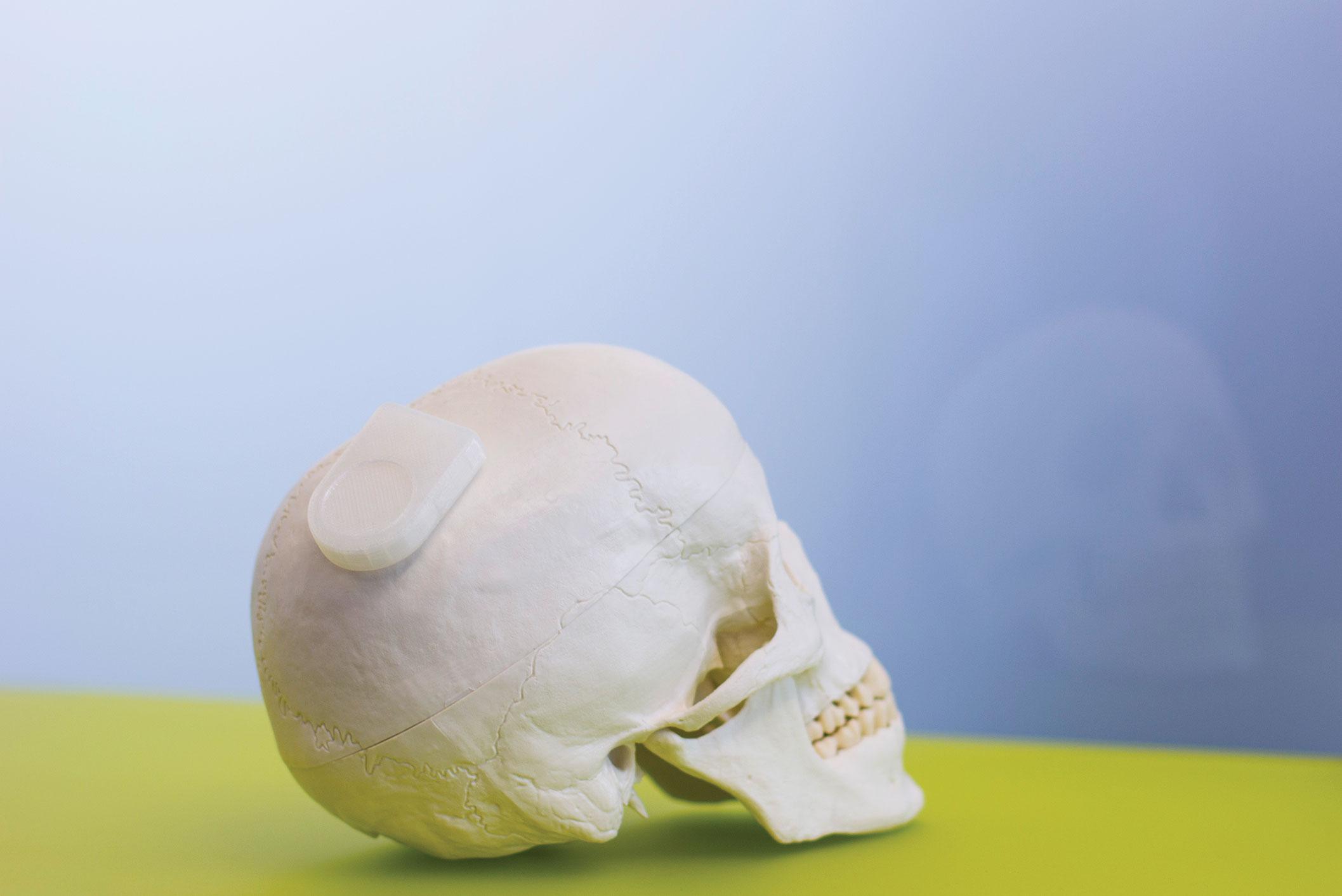A model of a wireless neurocommunication device sits on a skull.