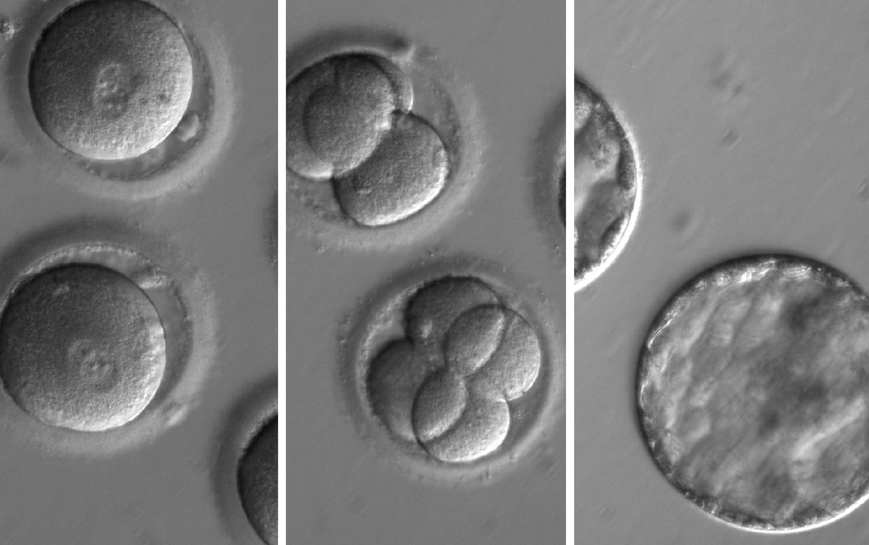 米国初のヒト胚遺伝子改変の詳細が明らかに、臨床試験も間近か