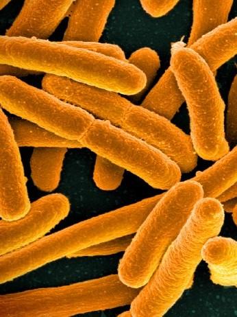 アンモニアを吸収する「飲む大腸菌」が安全性試験へ