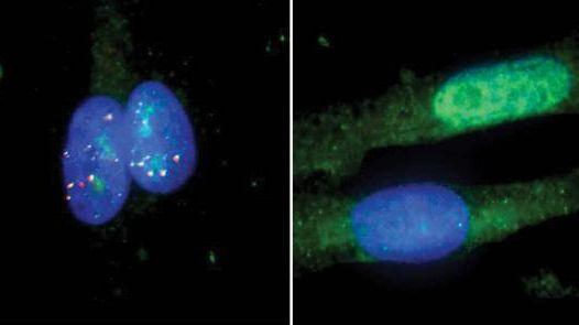 RNAを標的とするより安全なCRISPR療法で難病を治療へ