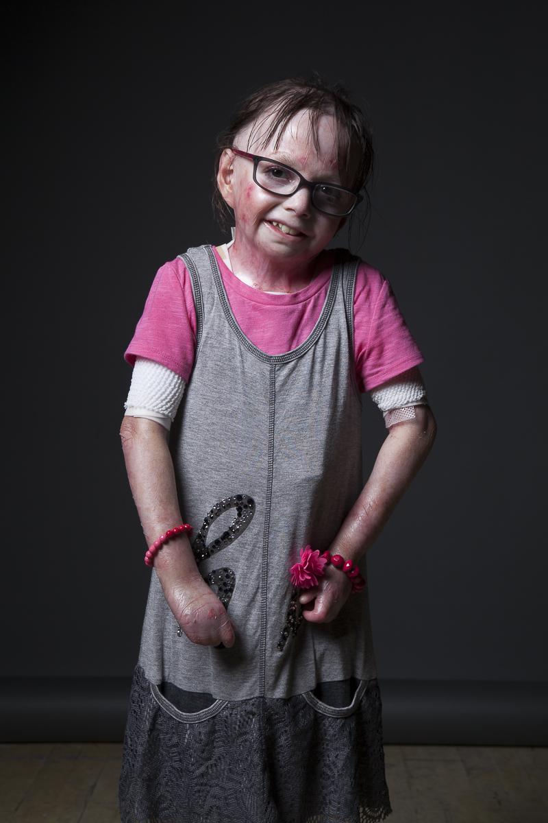 A girl with epidermolysis bullosa.
