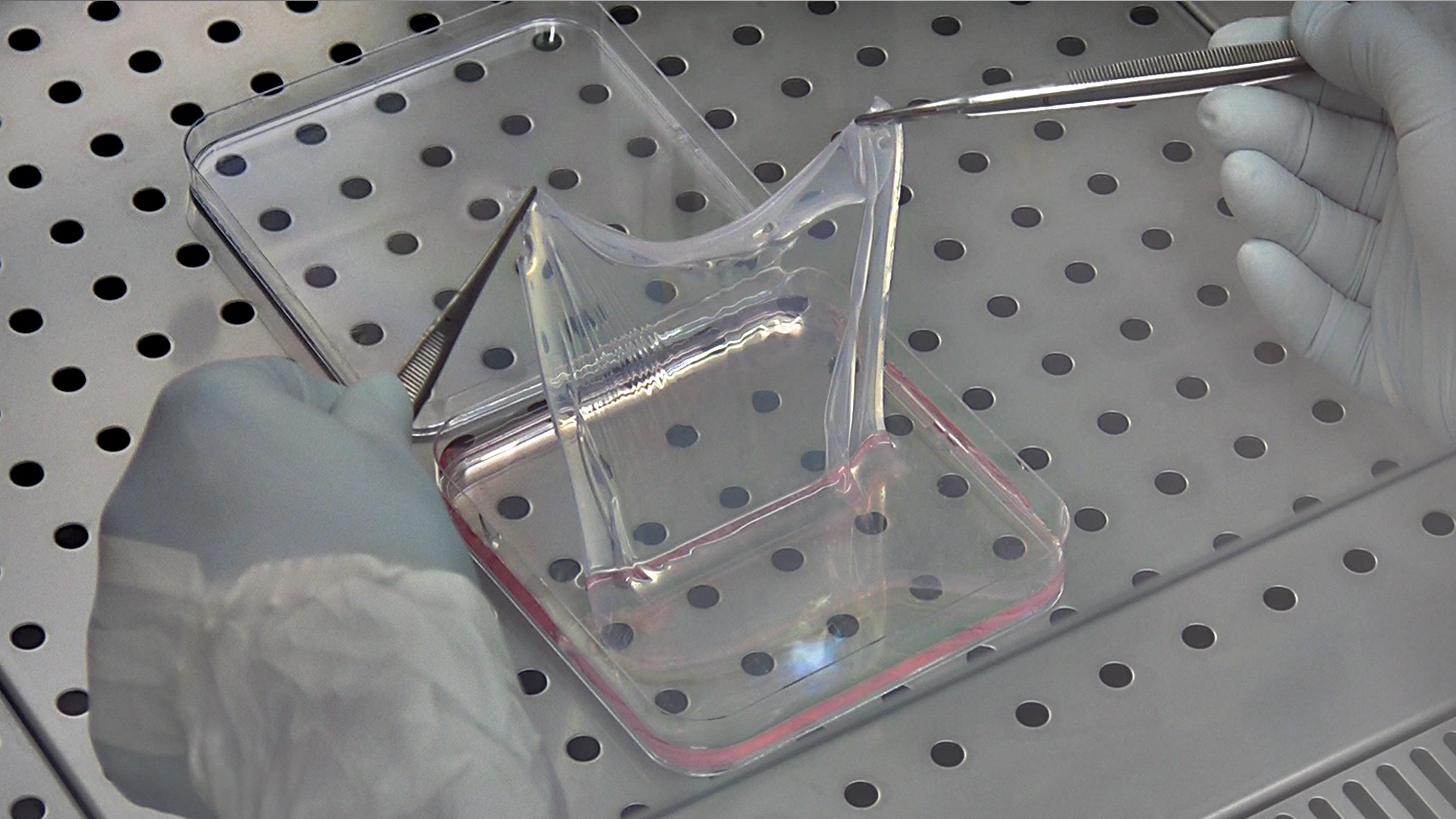 バタフライ・チルドレンに希望、遺伝子療法で皮膚の8割を再生