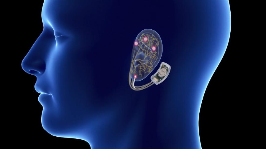 オピオイドの離脱症状を緩和する機器をFDAが承認