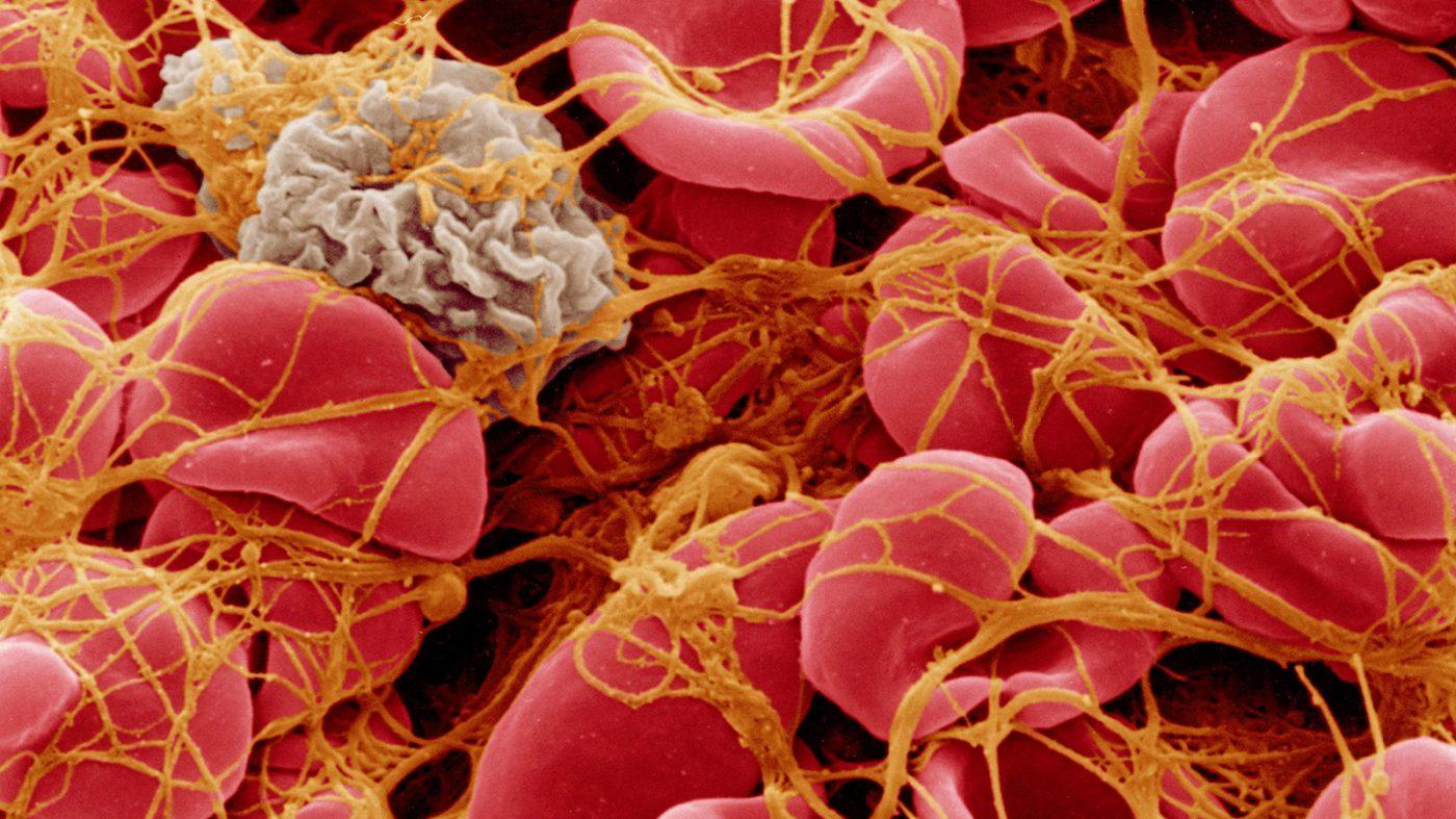 血友病患者への遺伝子療法、臨床試験の経過は良好