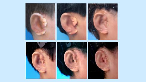 中国の研究者が培養した耳の移植に成功、3Dプリンター活用で