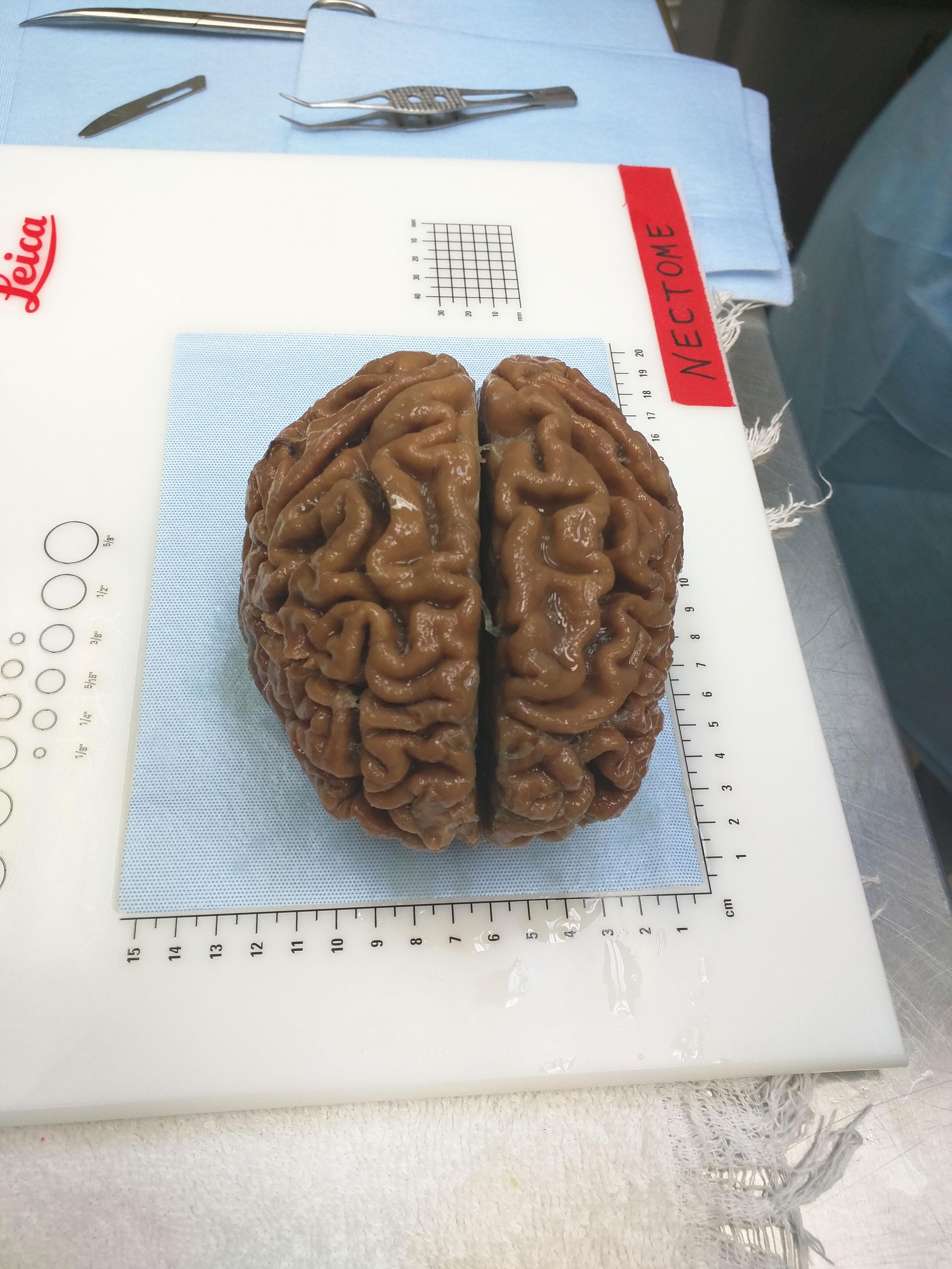 「生きた脳」の永久保存で 人類は不死を手に入れるのか