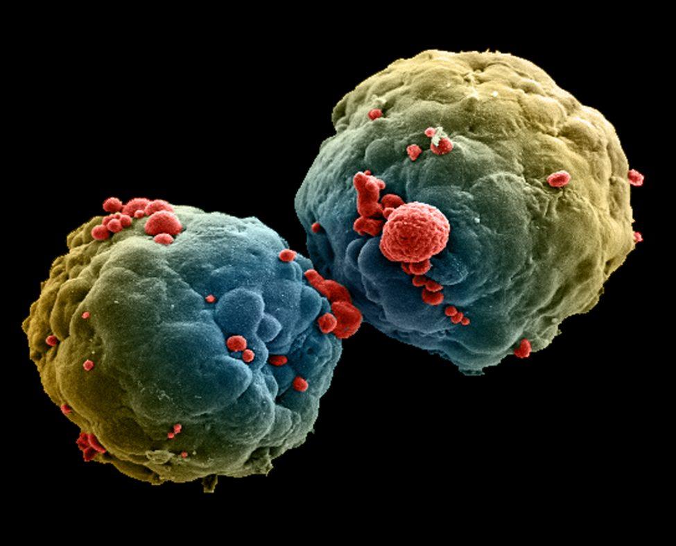 がんを増殖させる300の遺伝子を同定、「汎がんアトラス」が公開
