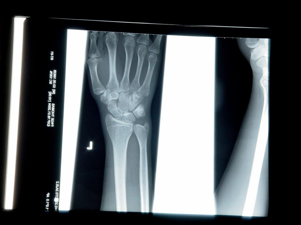 医療現場へのAI導入が加速、FDAが骨折診断ソフトを認可