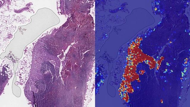 進行性乳がんを99%検出、グーグルのAIツールが「病理医超え」