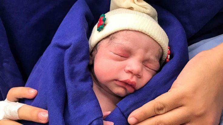 世界初、死亡ドナーから移植された子宮での出産に成功