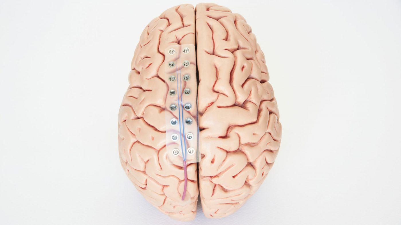 深層学習で脳内の言葉を「発声」、コロンビア大学が新成果