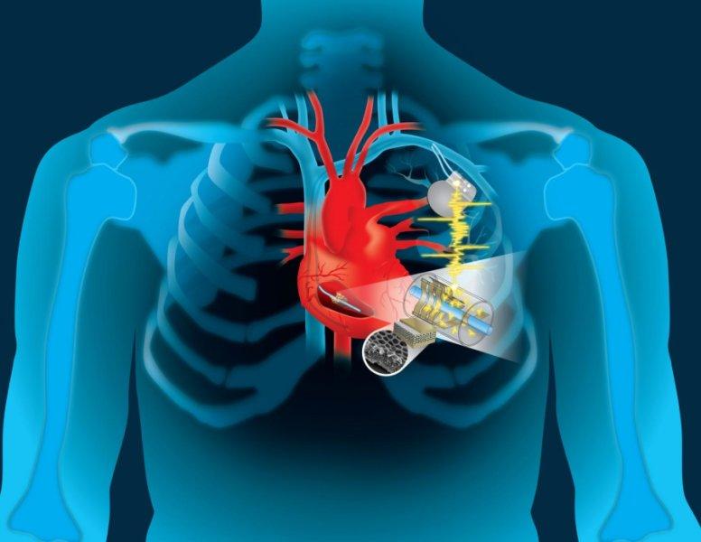 心臓の鼓動で充電、電池交換不要の「未来のペースメーカー」