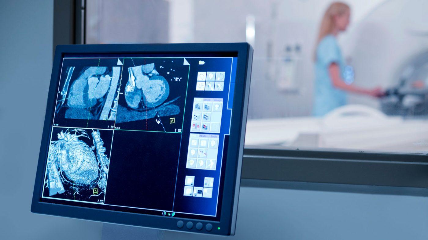 米FDA、AI医療機器の新たな規制枠組みを検討