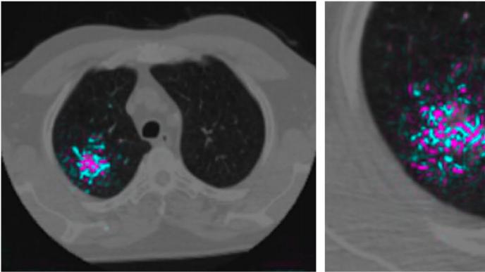 グーグルが肺がん検出AIを開発、精度で医師上回る