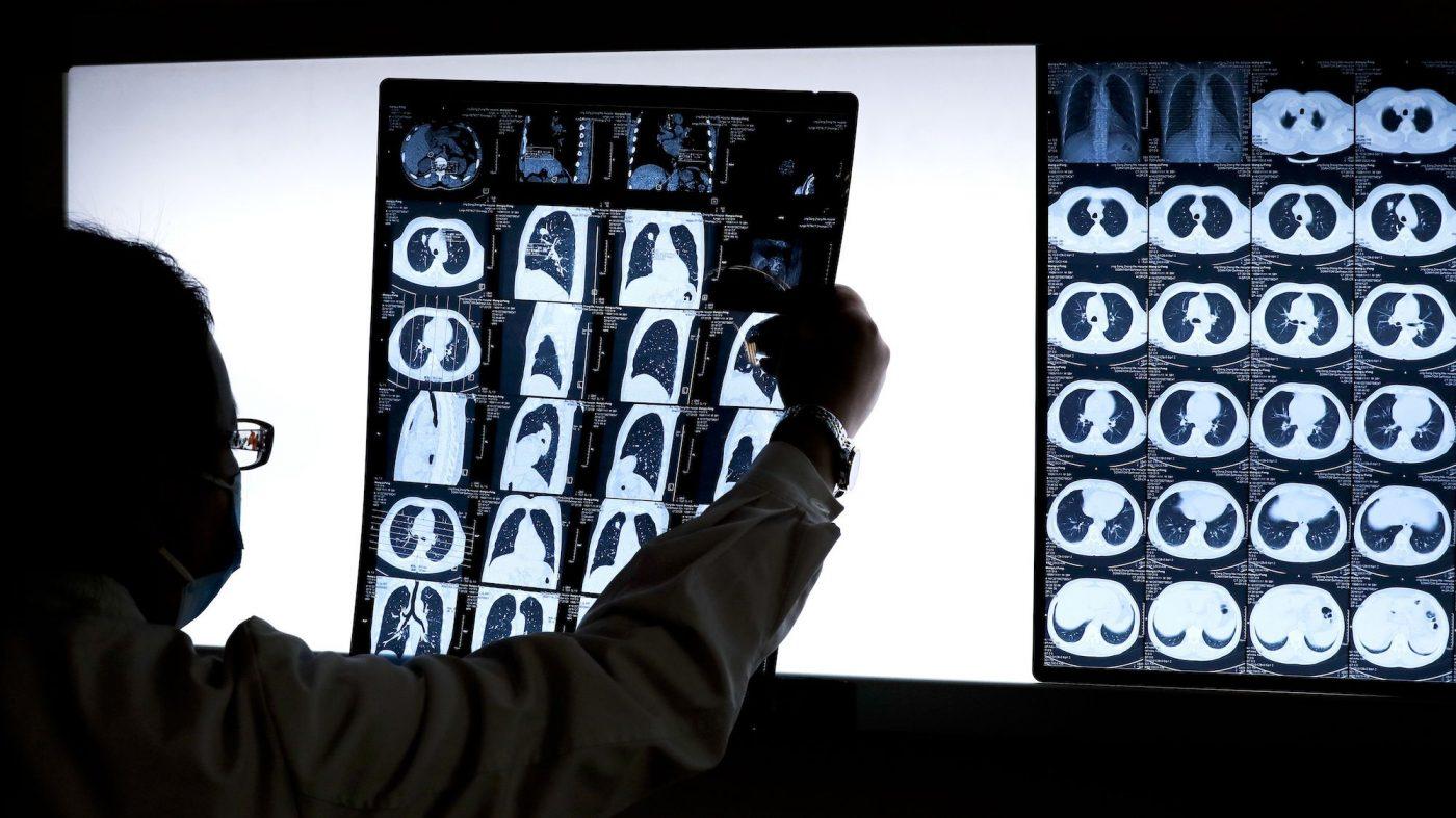 GANでがん診断の精度向上、独研究者が新手法