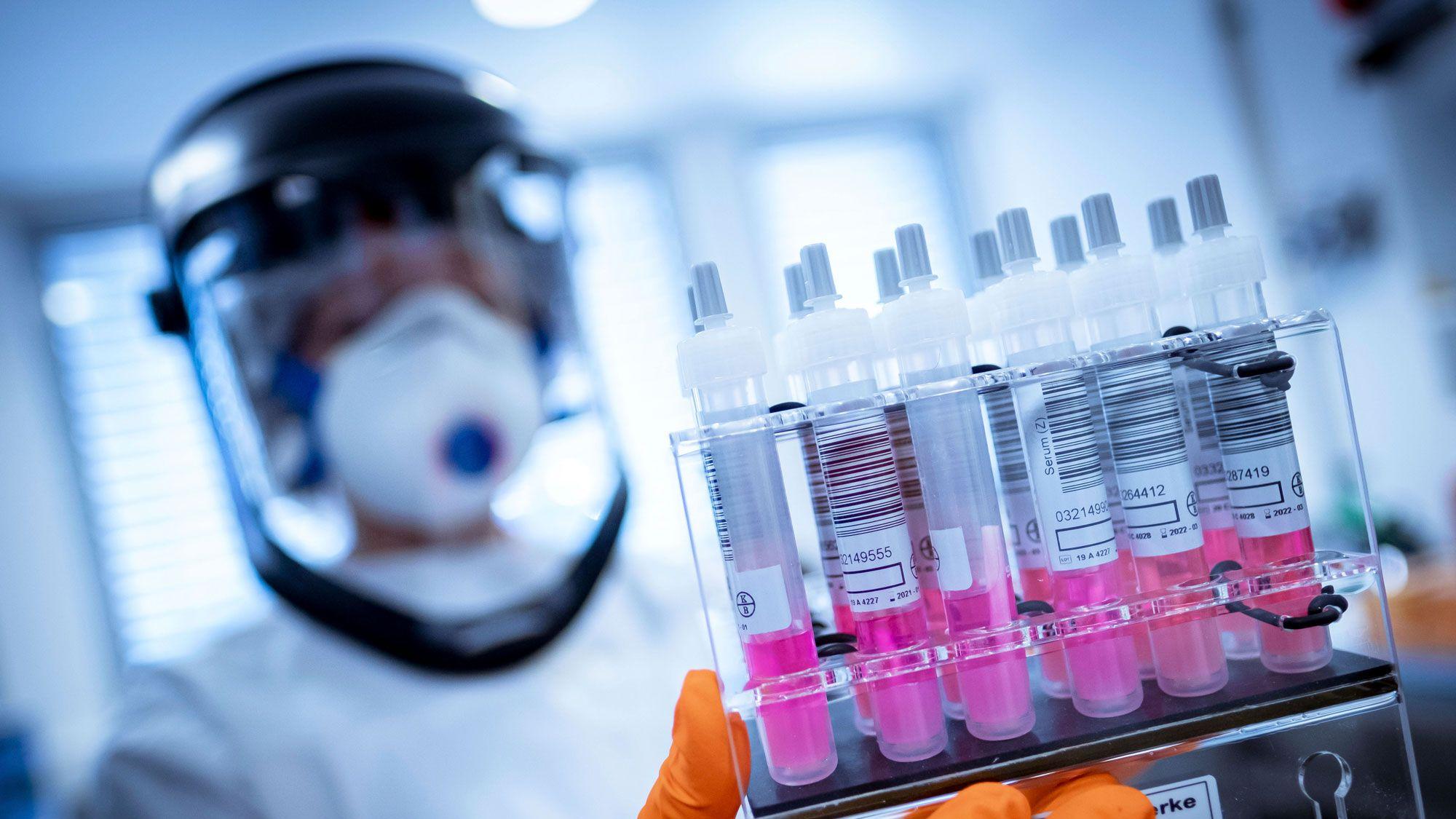 新型コロナ、感染力ピークは発症後「5日」か=独新研究