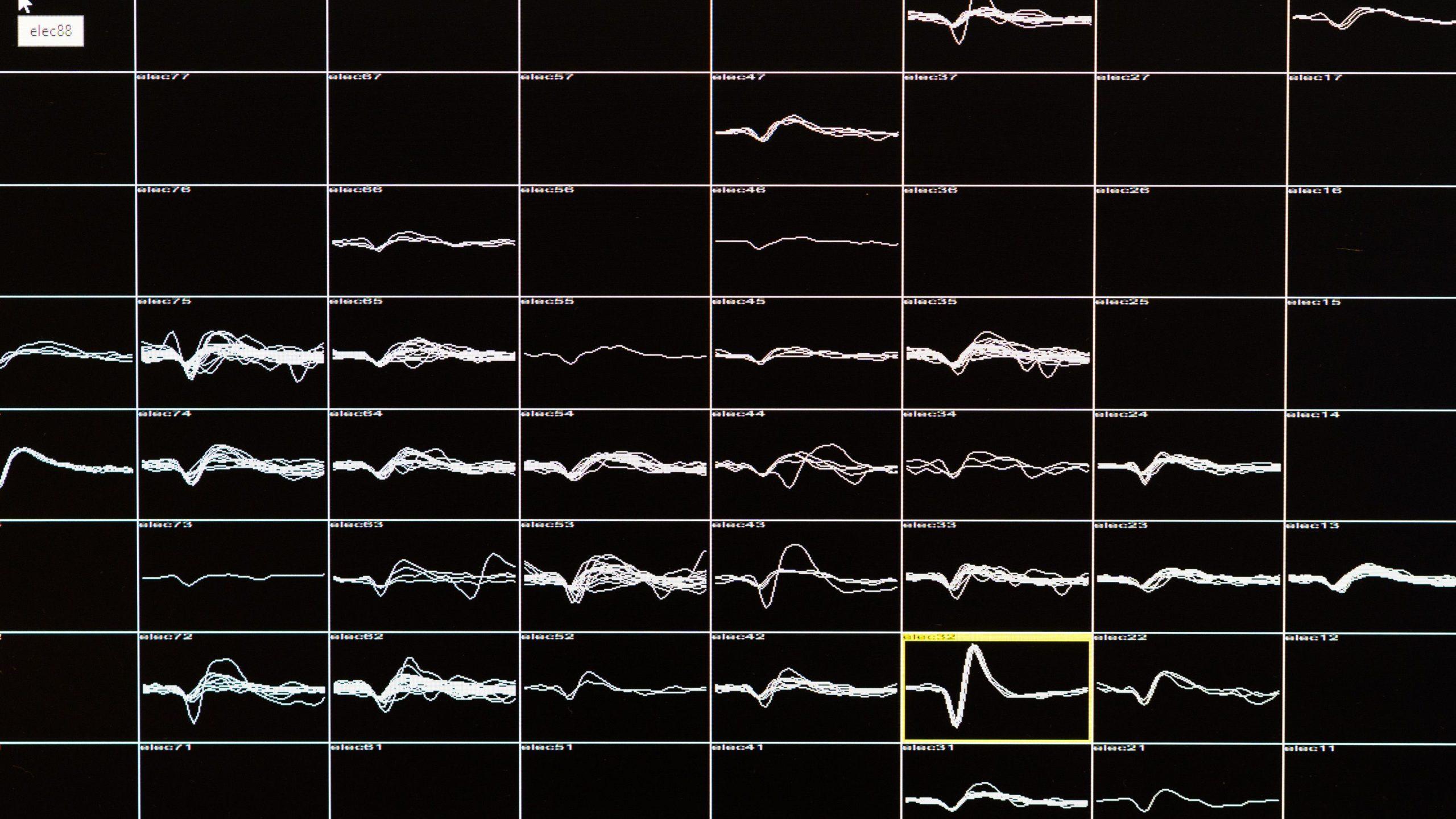 カメラ映像を脳に直接送信、 16年間失っていた視力を 取り戻したテクノロジー