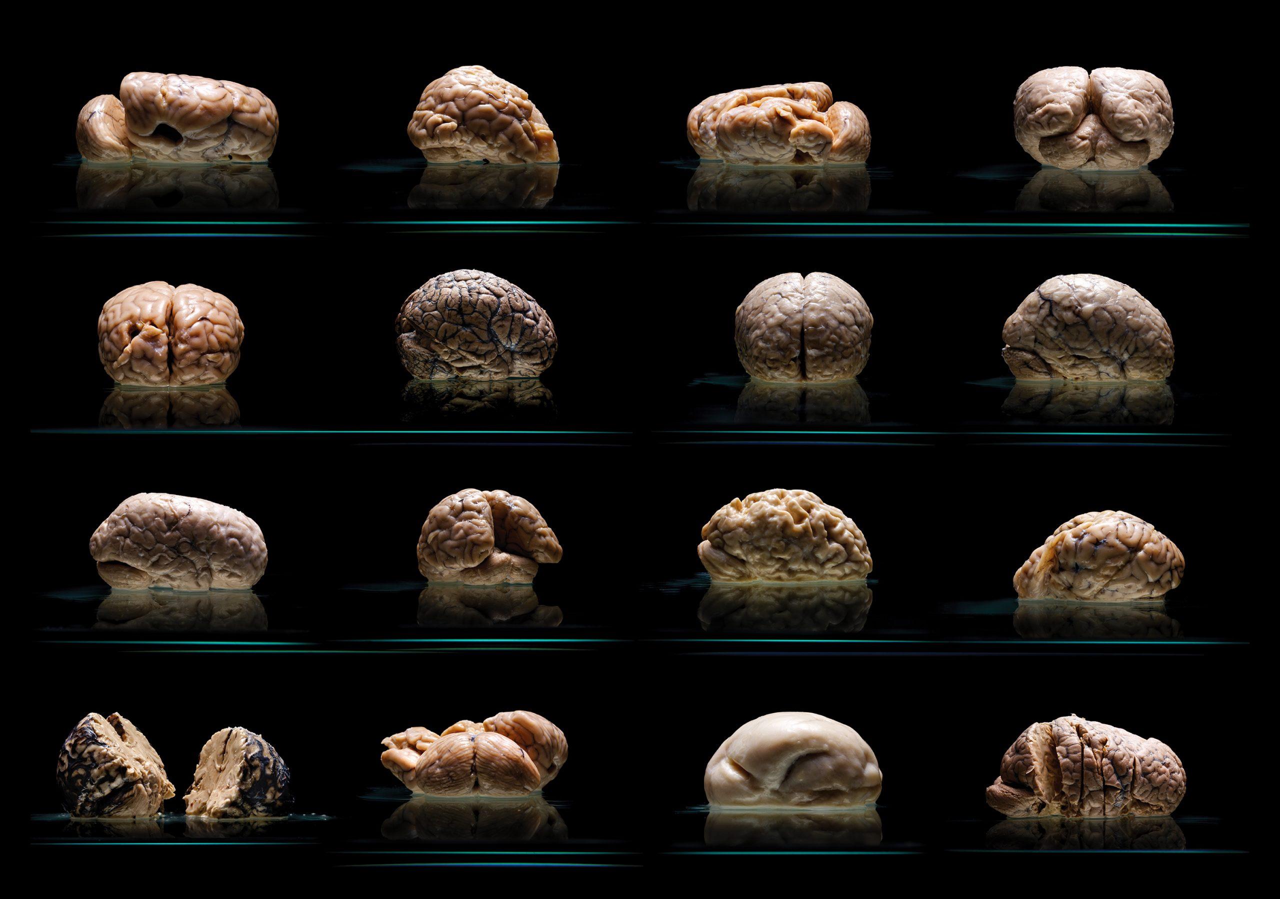 世界最大級の貴重な脳のコレクション